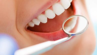 How to Compare Dental Insurance Companies